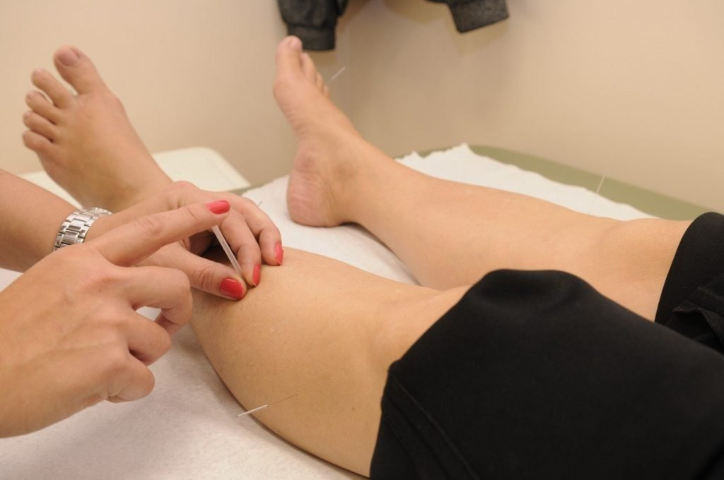 acupuncture needle being inserted into woman's leg