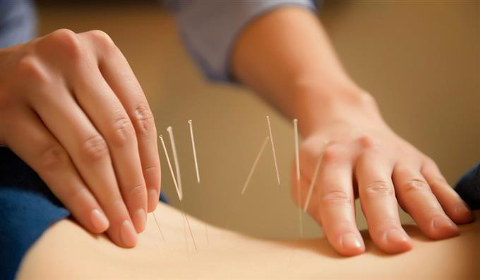acupuncturist treating patient with needles